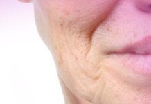 endoskopik yüz germe