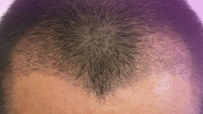 saç ekimi