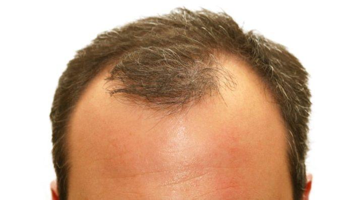 saç ekimi plastik cerrah