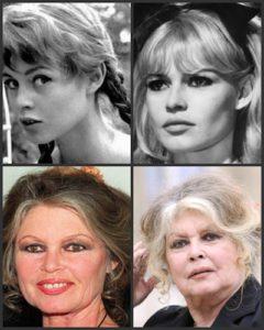 yaşa bağlı yüz değişiklikleri