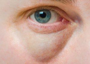 göz altındaki torbaların tedavisi alt göz kapağı ameliyatıdır
