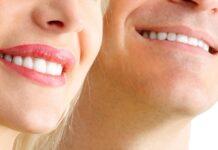 gülme çizgileri tedavisi